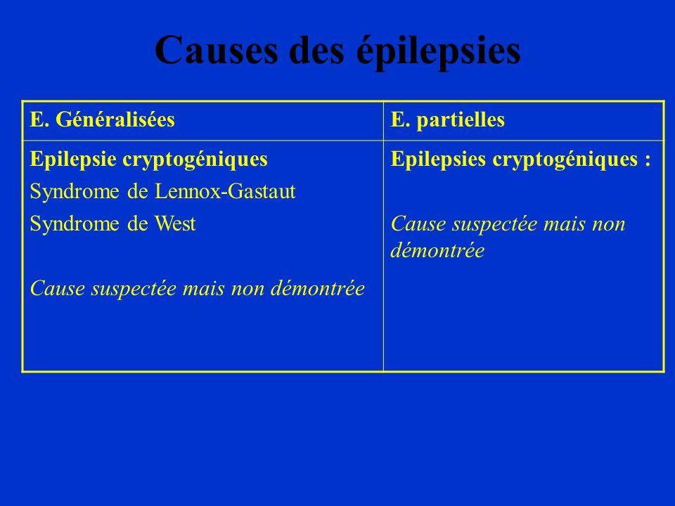 Causes des épilepsies E. GénéraliséesE. partielles Epilepsie cryptogéniques Syndrome de Lennox-Gastaut Syndrome de West Cause suspectée mais non démon