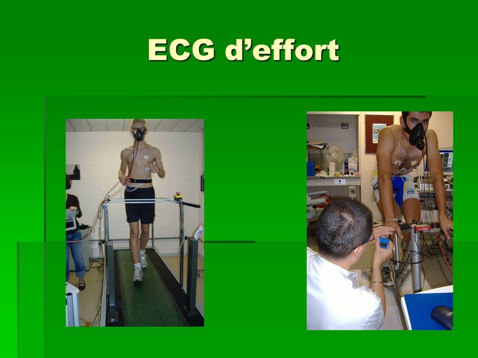 ECG deffort