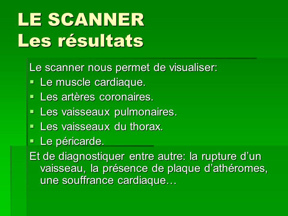 LE SCANNER Les résultats Le scanner nous permet de visualiser: Le muscle cardiaque. Le muscle cardiaque. Les artères coronaires. Les artères coronaire
