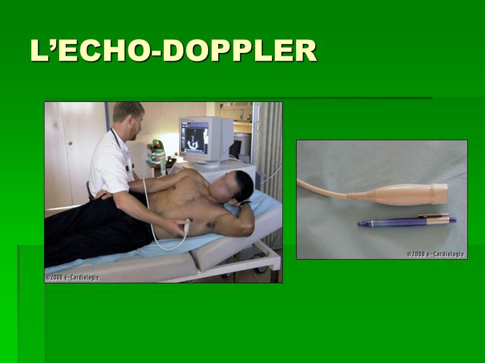 LECHO-DOPPLER
