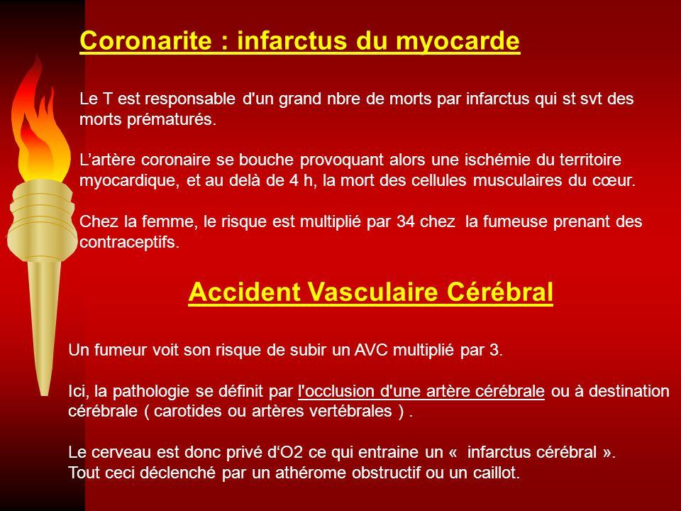 Coronarite : infarctus du myocarde Le T est responsable d'un grand nbre de morts par infarctus qui st svt des morts prématurés. Lartère coronaire se b