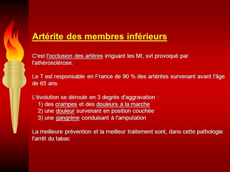 Artérite des membres inférieurs C'est l'occlusion des artères irriguant les MI, svt provoqué par l'athérosclérose. Le T est responsable en France de 9