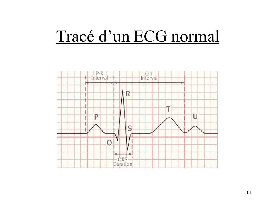 Tracé dun ECG normal 11