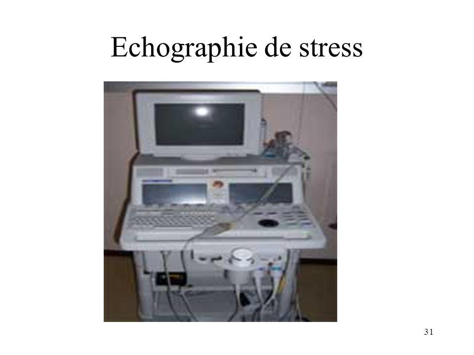 Echographie de stress 31