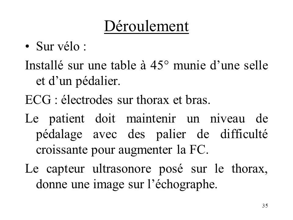 Déroulement Sur vélo : Installé sur une table à 45° munie dune selle et dun pédalier. ECG : électrodes sur thorax et bras. Le patient doit maintenir u