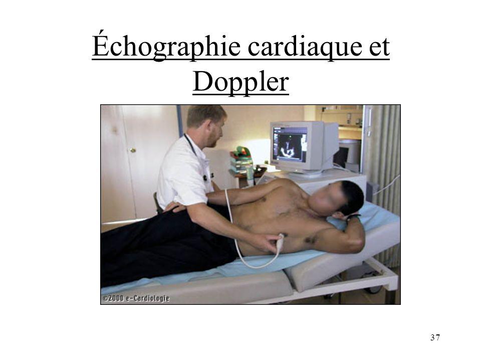 Échographie cardiaque et Doppler 37