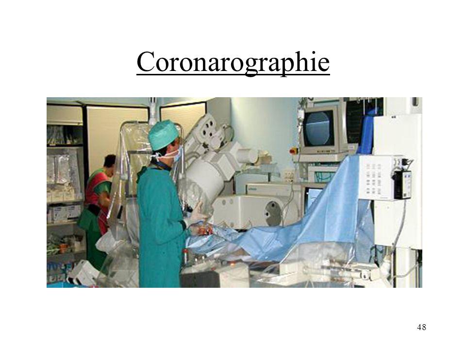 Coronarographie 48
