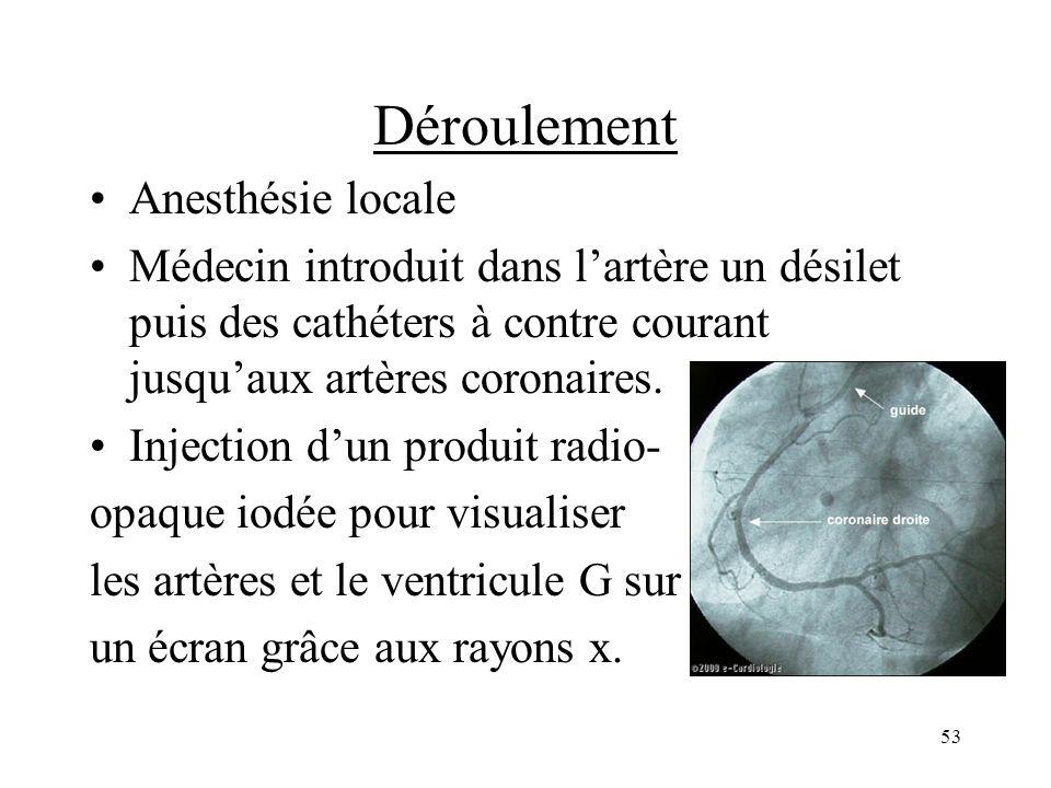 Déroulement Anesthésie locale Médecin introduit dans lartère un désilet puis des cathéters à contre courant jusquaux artères coronaires. Injection dun