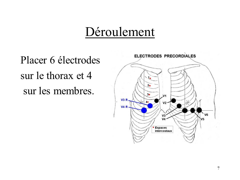 1 : poignet gauche face interne = jaune = Jeune 1 : jambe gauche face externe = vert = Voyou 1 : jambe droite face externe = noir = Non 1 : poignet droit face interne = rouge = Recommandable 1 : 4 ème espace intercostal droit = V1 rouge 1 : 4 ème espace intercostal gauche = V2 jaune 1 : mi-chemin entre V2 et V4 = V3 vert 1 : sous le mamelon gauche au milieu de lespace cou/épaule = V4 marron 1 : mi-chemin entre V4 et V6 = V5 noir 1 : sous aisselle, ligne médiane de la face interne du bras = V6 violet Sur le thorax : puis ordre alphabétique : M N V 8