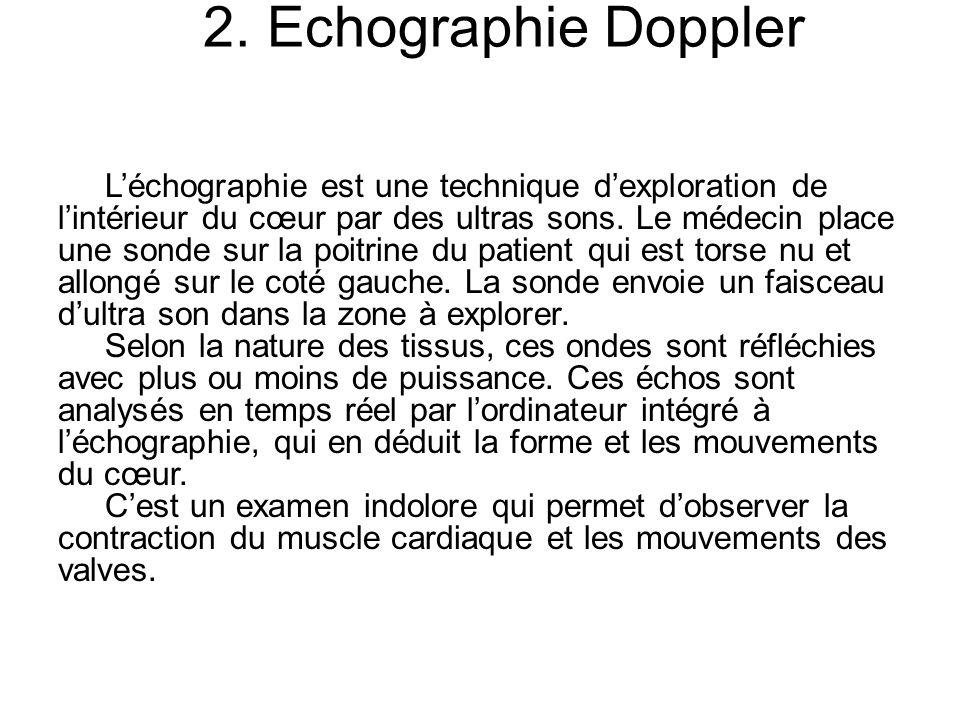 2. Echographie Doppler Léchographie est une technique dexploration de lintérieur du cœur par des ultras sons. Le médecin place une sonde sur la poitri