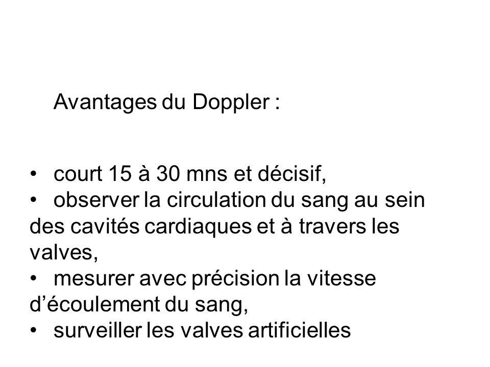 Avantages du Doppler : court 15 à 30 mns et décisif, observer la circulation du sang au sein des cavités cardiaques et à travers les valves, mesurer avec précision la vitesse découlement du sang, surveiller les valves artificielles
