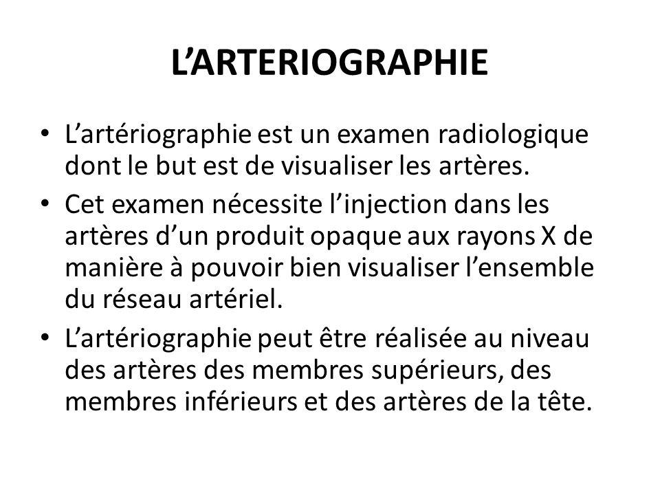 LARTERIOGRAPHIE Lartériographie est un examen radiologique dont le but est de visualiser les artères. Cet examen nécessite linjection dans les artères