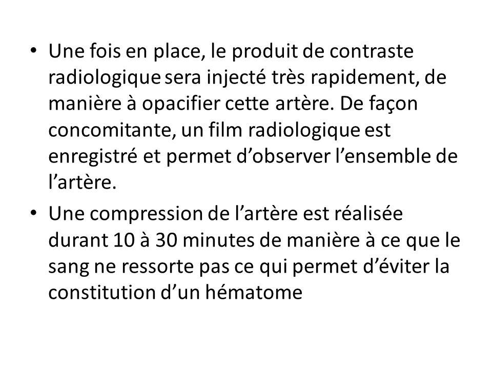 Une fois en place, le produit de contraste radiologique sera injecté très rapidement, de manière à opacifier cette artère. De façon concomitante, un f