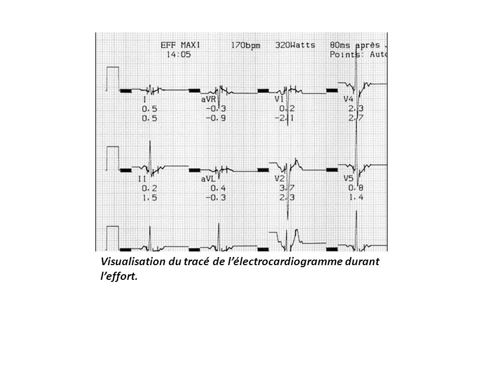 Visualisation du tracé de lélectrocardiogramme durant leffort.