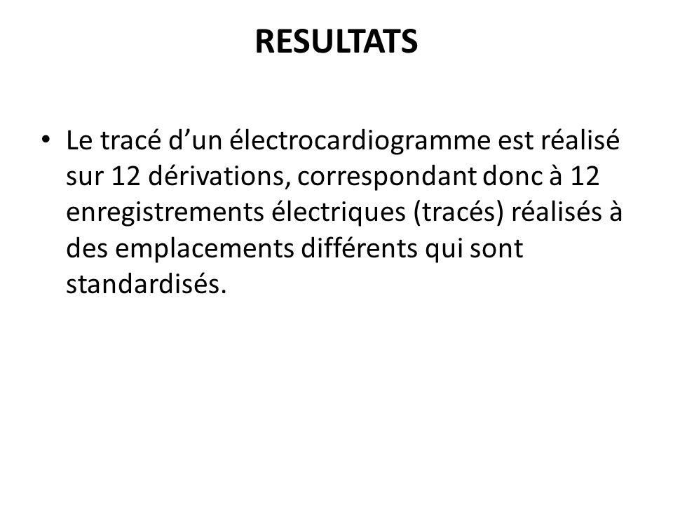 RESULTATS Le tracé dun électrocardiogramme est réalisé sur 12 dérivations, correspondant donc à 12 enregistrements électriques (tracés) réalisés à des emplacements différents qui sont standardisés.