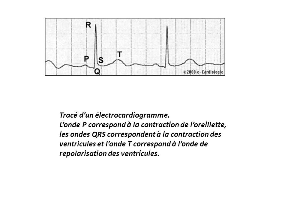 Tracé dun électrocardiogramme. Londe P correspond à la contraction de loreillette, les ondes QRS correspondent à la contraction des ventricules et lon