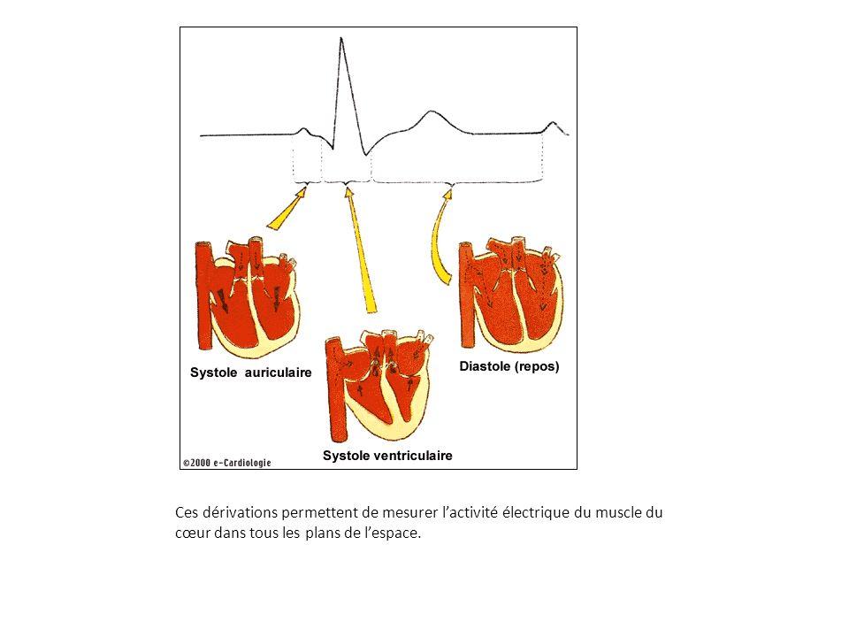 Ces dérivations permettent de mesurer lactivité électrique du muscle du cœur dans tous les plans de lespace.