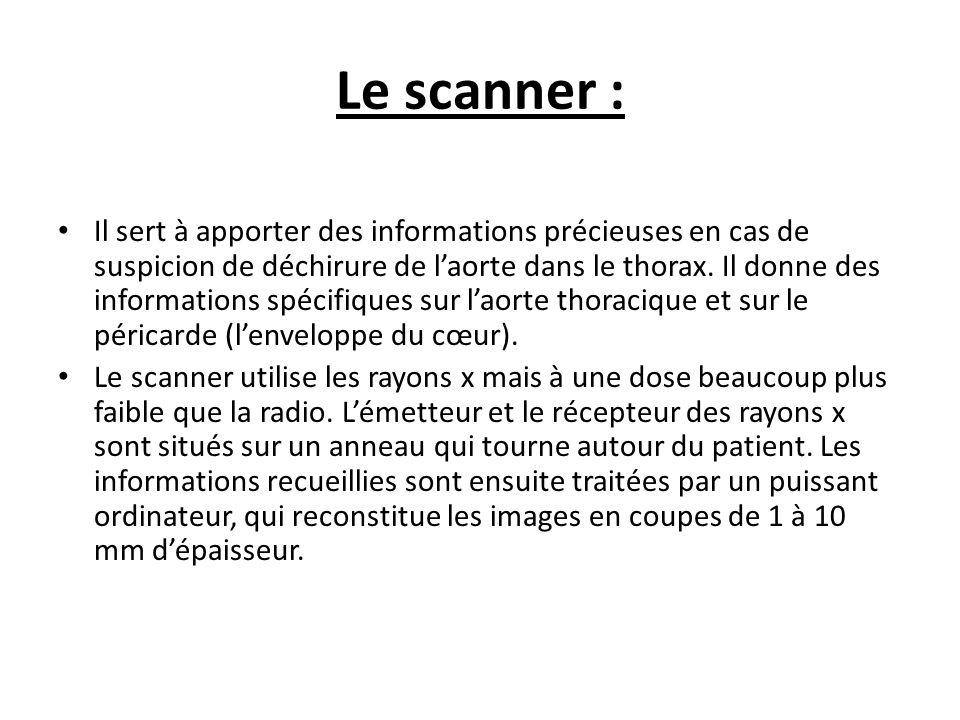 Le scanner : Il sert à apporter des informations précieuses en cas de suspicion de déchirure de laorte dans le thorax. Il donne des informations spéci