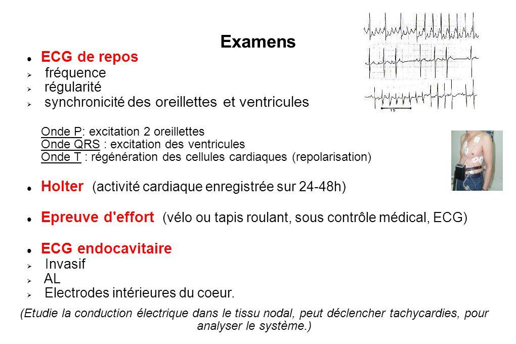 Les traitements Electriques internes : Ablation par courant de haute fréquence Courant dans la zone où nait le trouble du rythme, avec l impact électrique cela cautérise le tissu cardiaque.