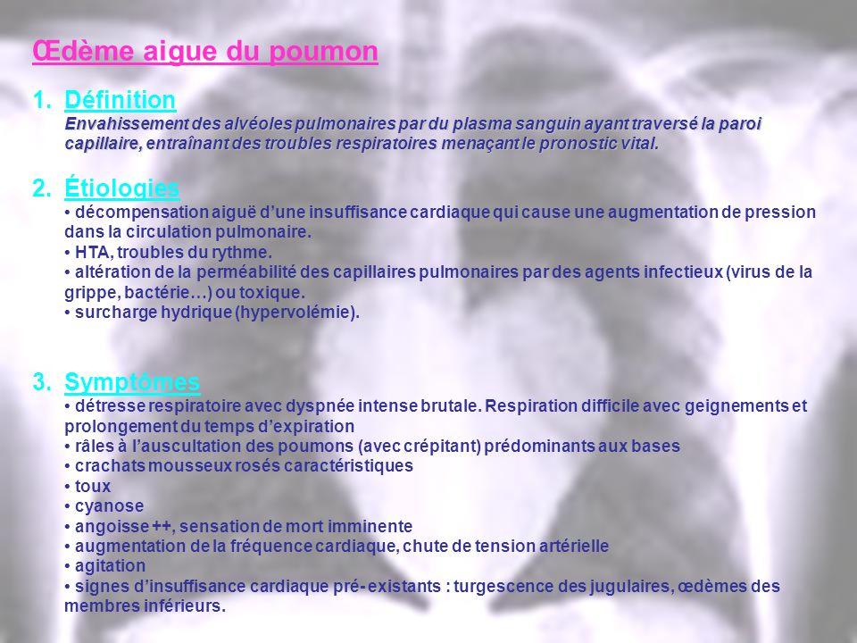 Œdème aigue du poumon 1.Définition Envahissement des alvéoles pulmonaires par du plasma sanguin ayant traversé la paroi capillaire, entraînant des tro