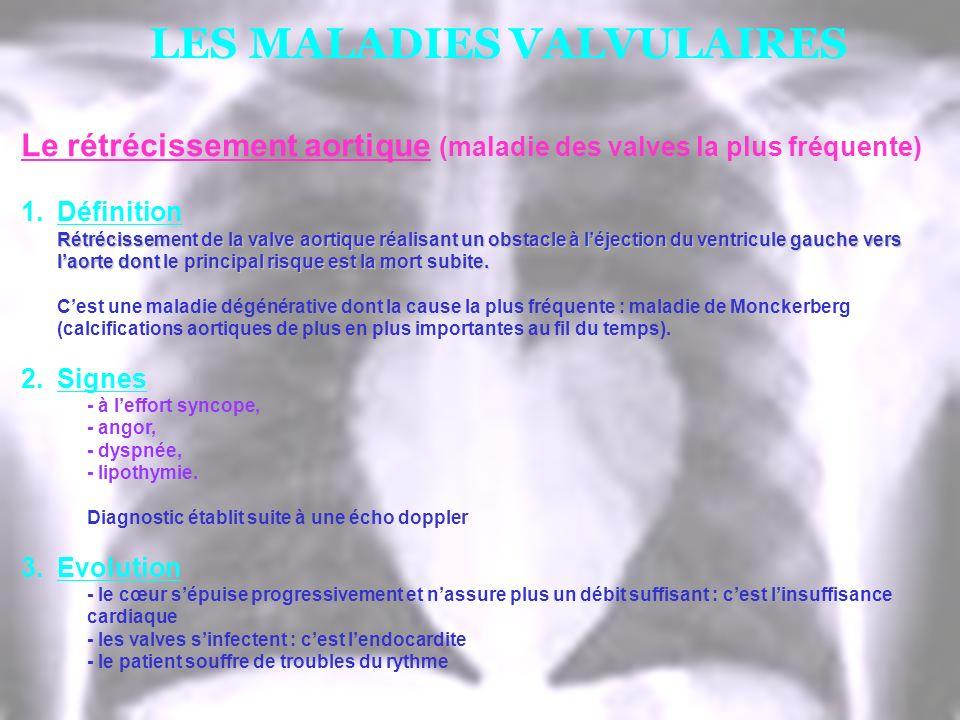 LES MALADIES VALVULAIRES Le rétrécissement aortique (maladie des valves la plus fréquente) 1.Définition Rétrécissement de la valve aortique réalisant