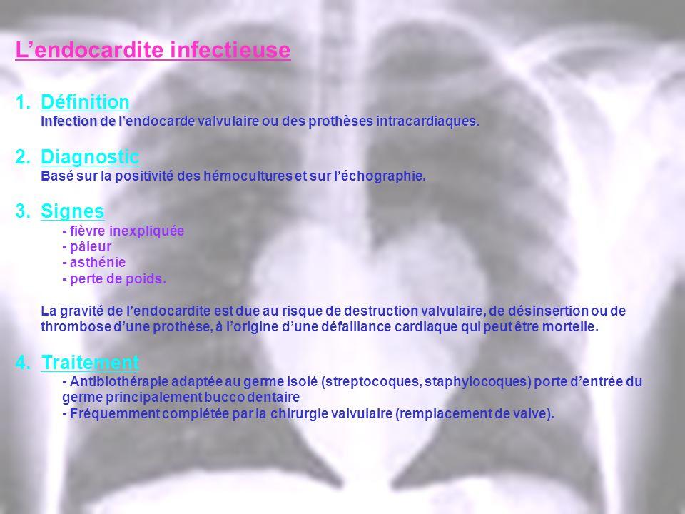 Lendocardite infectieuse 1.Définition Infection de lendocarde valvulaire ou des prothèses intracardiaques. 2.Diagnostic Basé sur la positivité des hém