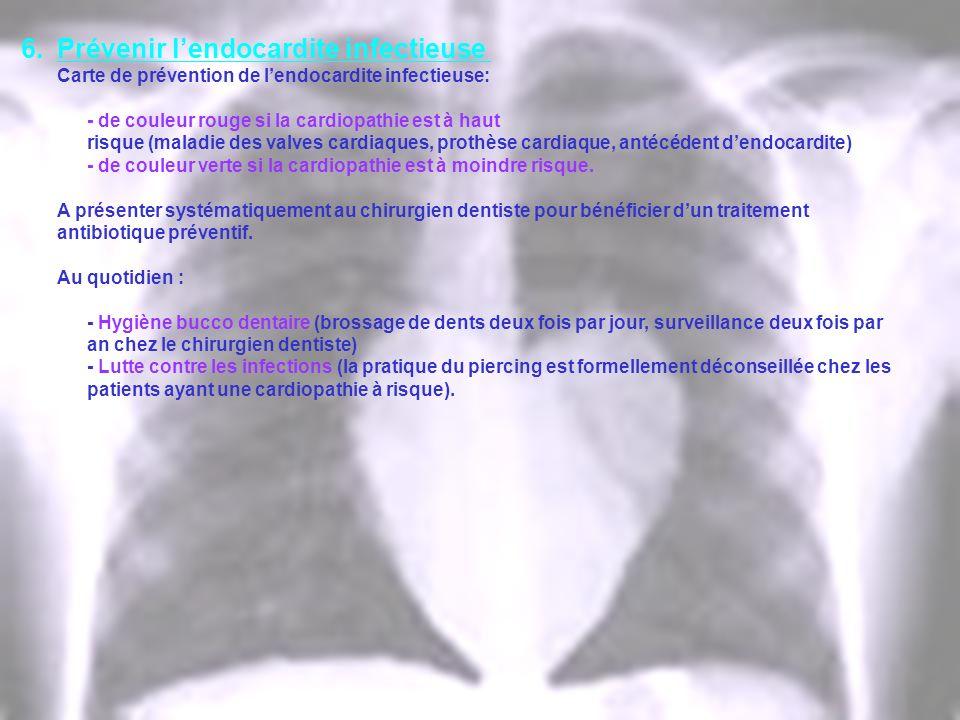 6.Prévenir lendocardite infectieuse Carte de prévention de lendocardite infectieuse: - de couleur rouge si la cardiopathie est à haut risque (maladie