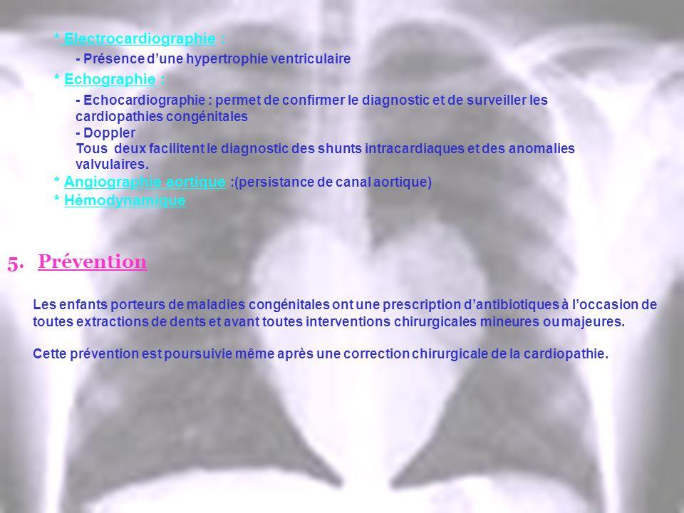* Electrocardiographie : - Présence dune hypertrophie ventriculaire * Echographie : - Echocardiographie : permet de confirmer le diagnostic et de surv