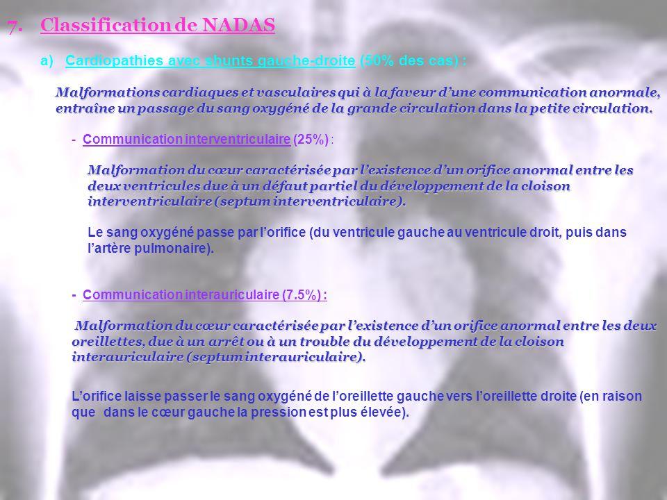 7.Classification de NADAS a)Cardiopathies avec shunts gauche-droite (50% des cas) : Malformations cardiaques et vasculaires qui à la faveur dune commu
