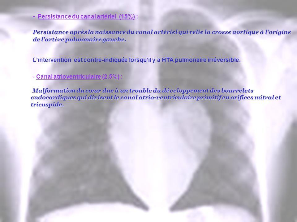 - Persistance du canal artériel (15%) : Persistance après la naissance du canal artériel qui relie la crosse aortique à lorigine de lartère pulmonaire