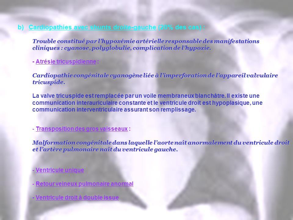 b)Cardiopathies avec shunts droite-gauche (20% des cas) : Trouble constitué par lhypoxémie artérielle responsable des manifestations cliniques : cyano