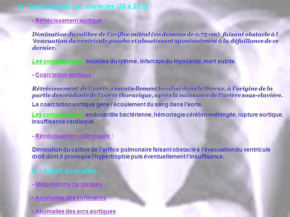 c)Cardiopathies par obstacles (20 à 25%) : - Rétrécissement aortique : Diminution du calibre de lorifice mitral (en dessous de 0.75 cm) faisant obstac
