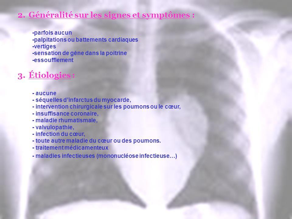 2.Généralité sur les signes et symptômes : -parfois aucun -palpitations ou battements cardiaques -vertiges -sensation de gêne dans la poitrine -essouf