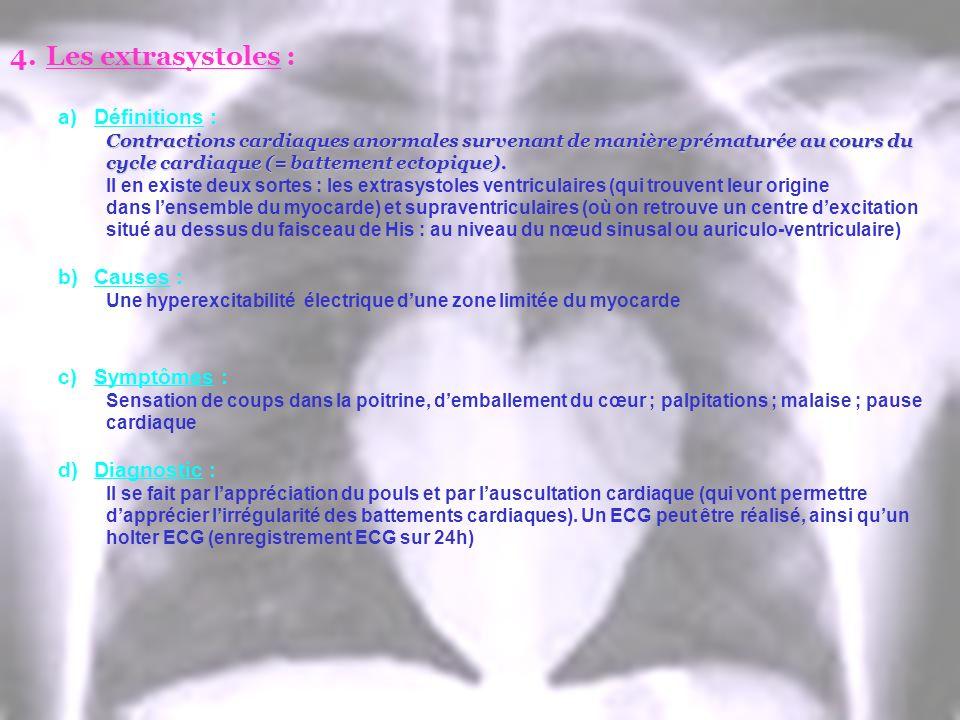 4.Les extrasystoles : a)Définitions : Contractions cardiaques anormales survenant de manière prématurée au cours du cycle cardiaque (= battement ectop