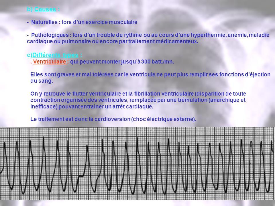 b) Causes : - Naturelles : lors dun exercice musculaire - Pathologiques : lors dun trouble du rythme ou au cours dune hyperthermie, anémie, maladie ca