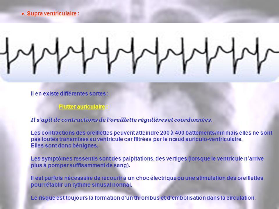 . Supra ventriculaire : Il en existe différentes sortes : Flutter auriculaire : Il sagit de contractions de loreillette régulières et coordonnées. Les