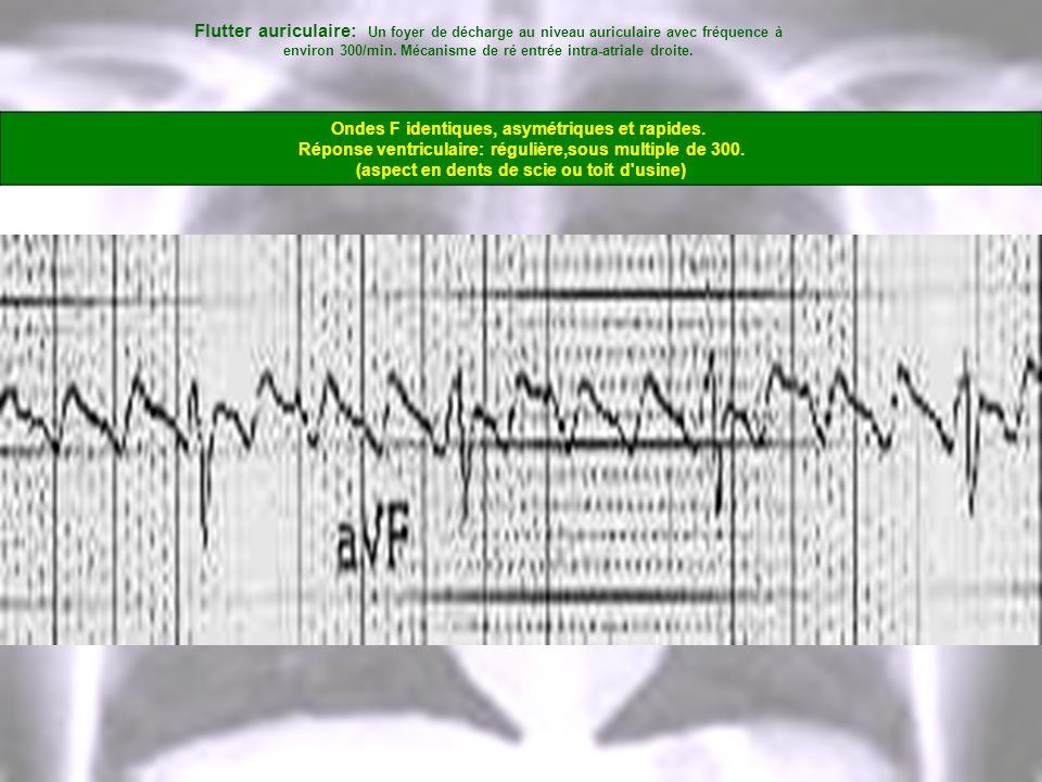 Flutter auriculaire: Un foyer de décharge au niveau auriculaire avec fréquence à environ 300/min. Mécanisme de ré entrée intra-atriale droite. Ondes F