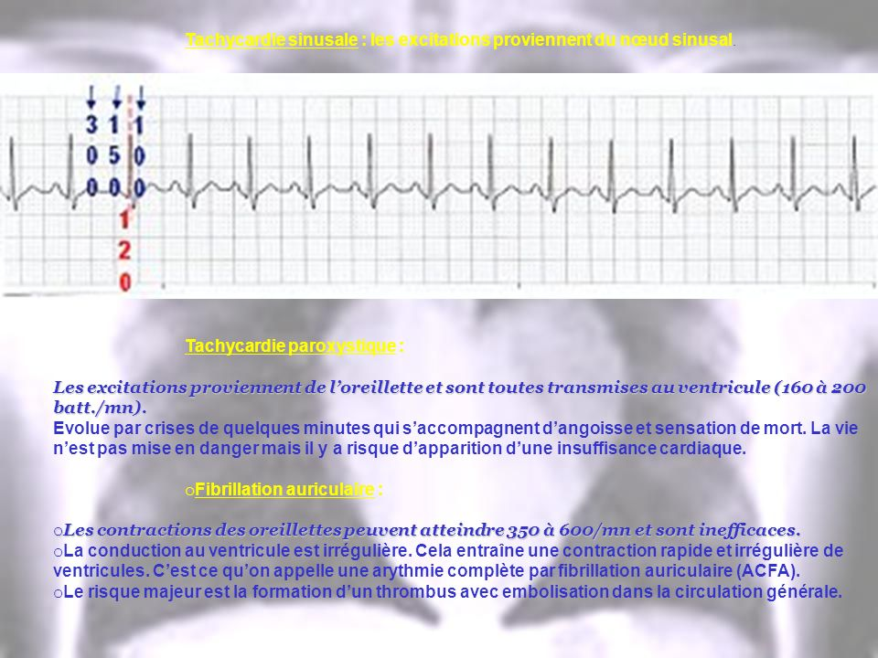 Tachycardie sinusale : les excitations proviennent du nœud sinusal. Tachycardie paroxystique : Les excitations proviennent de loreillette et sont tout