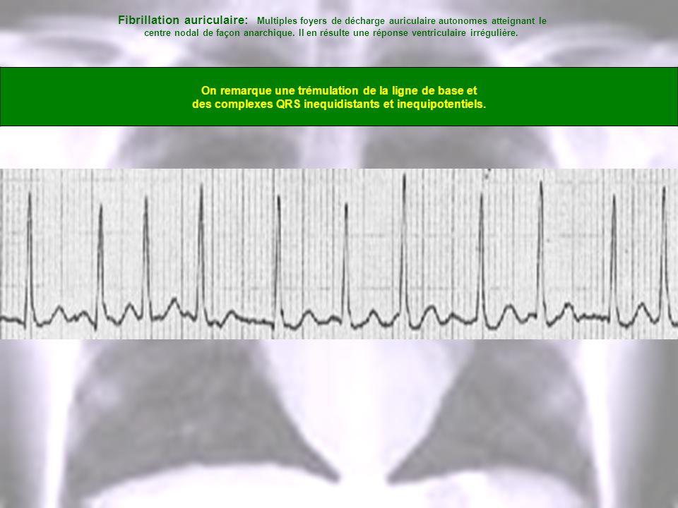 Fibrillation auriculaire: Multiples foyers de décharge auriculaire autonomes atteignant le centre nodal de façon anarchique. Il en résulte une réponse