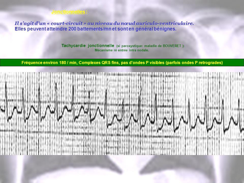Jonctionnelles : Il sagit dun « court-circuit » au niveau du nœud auriculo-ventriculaire. Elles peuvent atteindre 200 battements/mn et sont en général