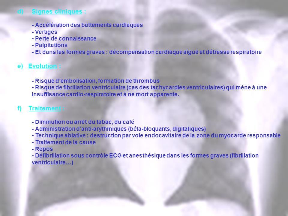 d)Signes cliniques : - Accélération des battements cardiaques - Vertiges - Perte de connaissance - Palpitations - Et dans les formes graves : décompen