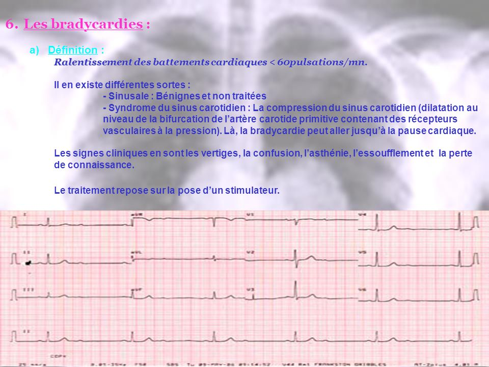 6.Les bradycardies : a)Définition : Ralentissement des battements cardiaques < 60pulsations/mn. Il en existe différentes sortes : - Sinusale : Bénigne