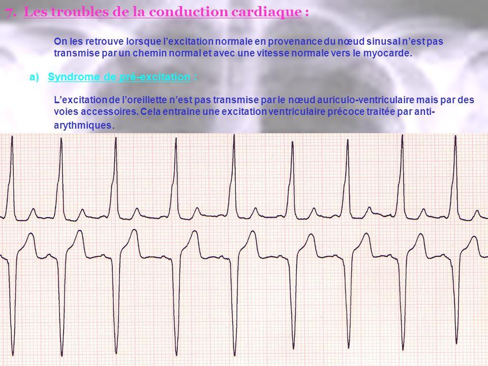 7.Les troubles de la conduction cardiaque : On les retrouve lorsque lexcitation normale en provenance du nœud sinusal nest pas transmise par un chemin