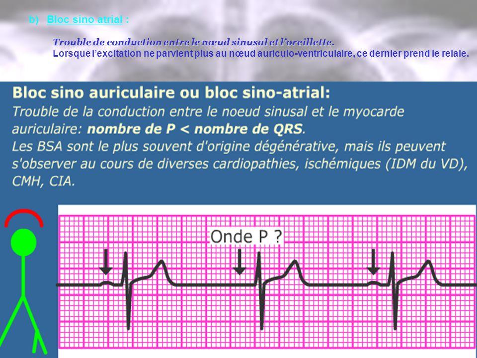b)Bloc sino atrial : Trouble de conduction entre le nœud sinusal et loreillette. Lorsque lexcitation ne parvient plus au nœud auriculo-ventriculaire,