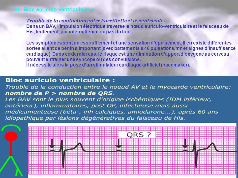 b)Bloc auriculo-ventriculaire : Trouble de la conduction entre loreillette et le ventricule. Dans un BAV, limpulsion électrique traverse le nœud auric