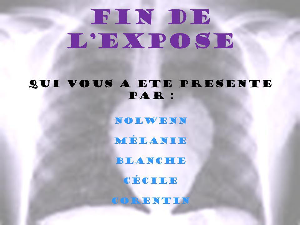 FIN DE LEXPOSE QUI VOUS A ETE PRESENTE PAR : Nolwenn Mélanie Blanche Cécile Corentin