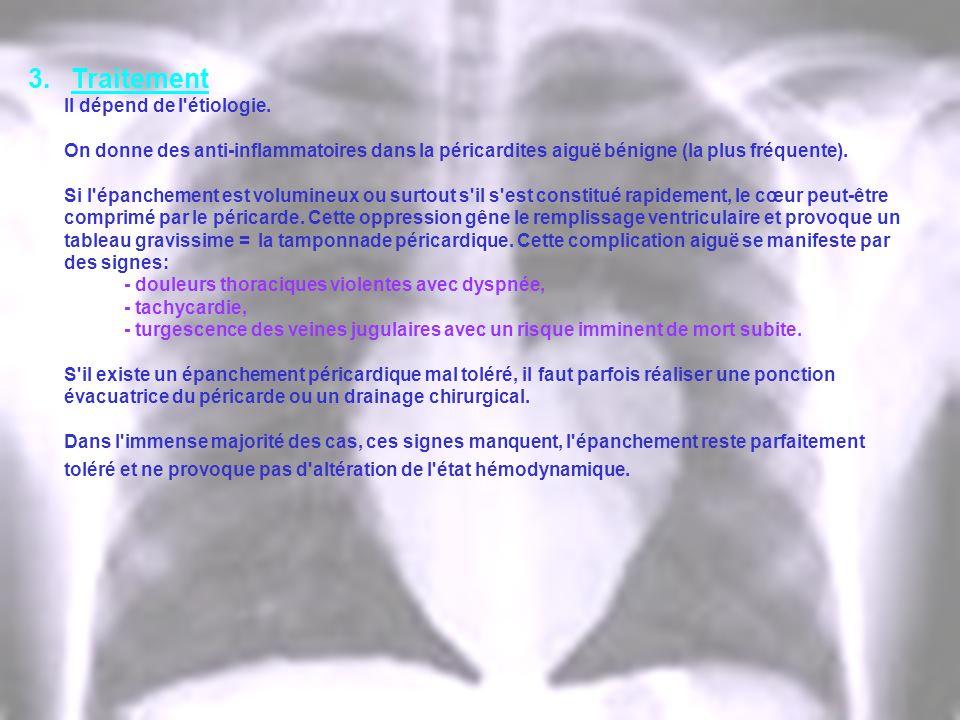 3. Traitement Il dépend de l'étiologie. On donne des anti-inflammatoires dans la péricardites aiguë bénigne (la plus fréquente). Si l'épanchement est