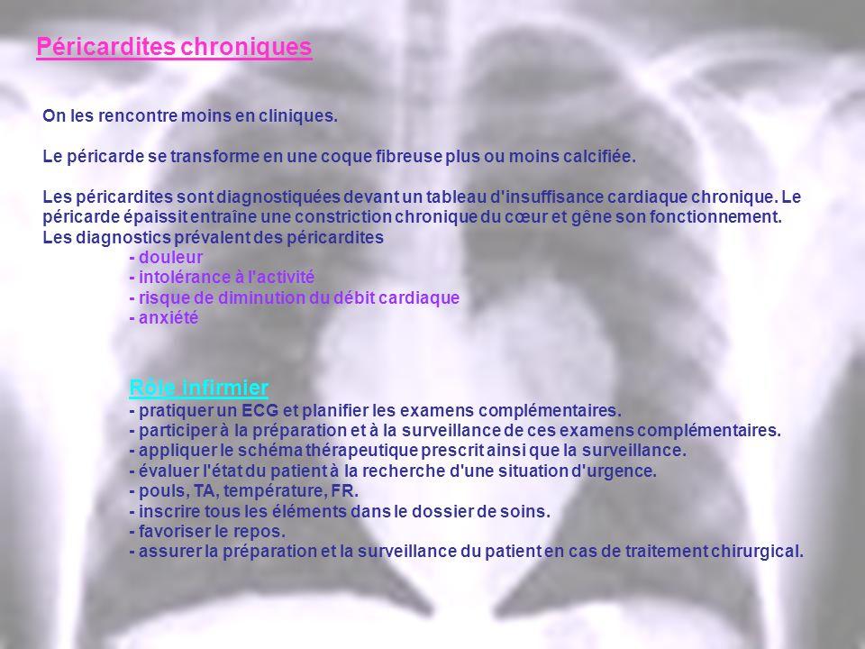 Péricardites chroniques On les rencontre moins en cliniques. Le péricarde se transforme en une coque fibreuse plus ou moins calcifiée. Les péricardite