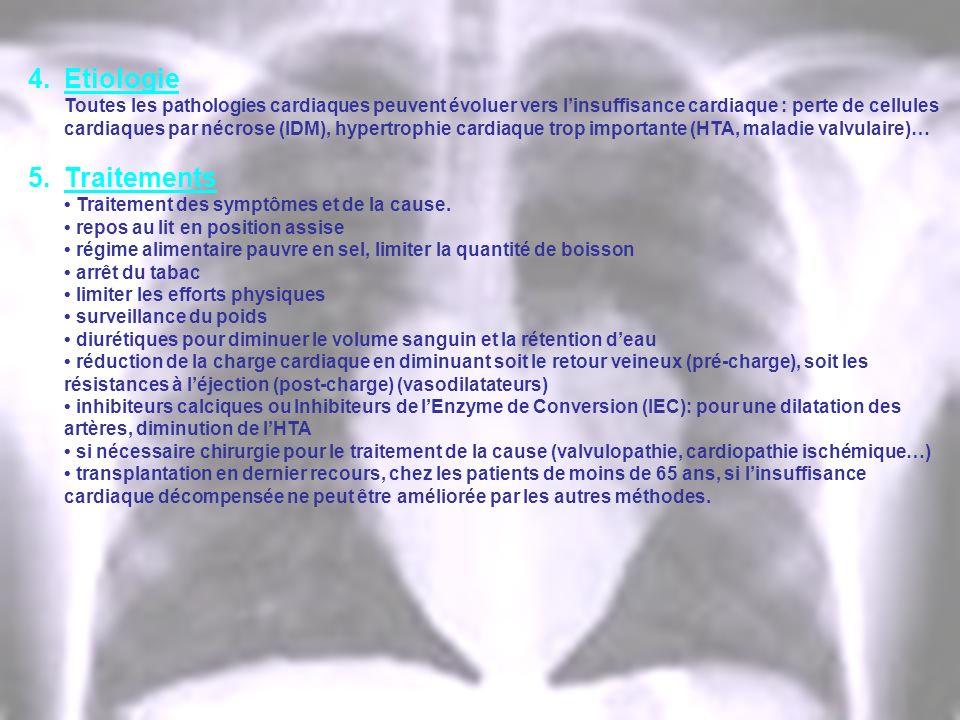 4.Etiologie Toutes les pathologies cardiaques peuvent évoluer vers linsuffisance cardiaque : perte de cellules cardiaques par nécrose (IDM), hypertrop