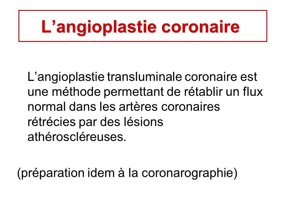 Langioplastie transluminale coronaire est une méthode permettant de rétablir un flux normal dans les artères coronaires rétrécies par des lésions athéroscléreuses.